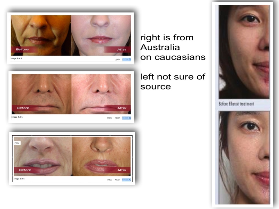 Sculptra in singapore - Korean Plastic Surgery Reference Archive