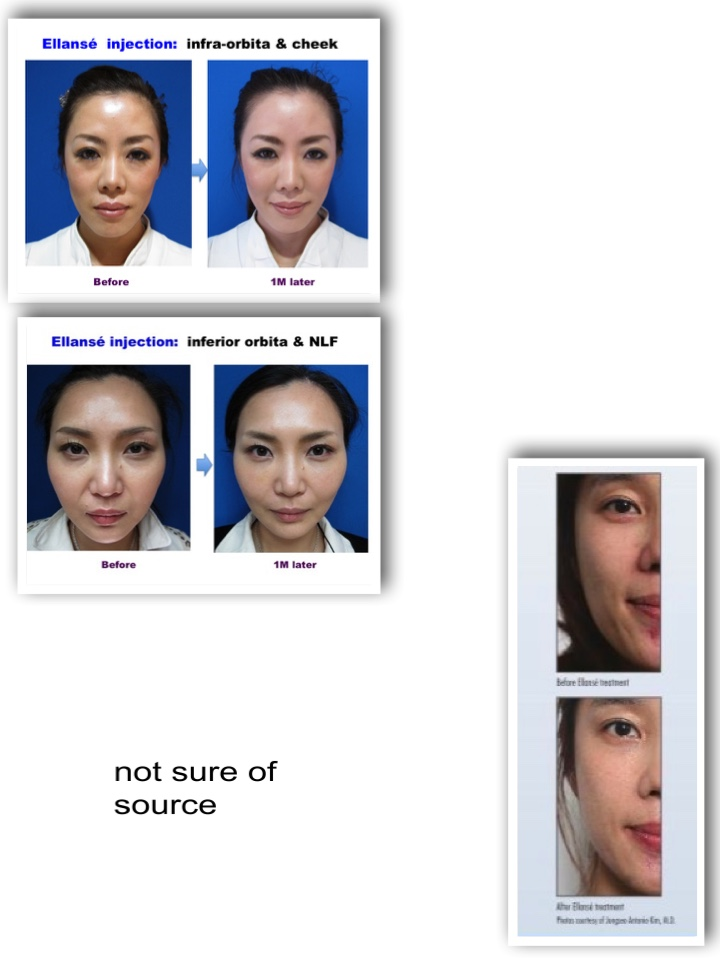 Sculptra in singapore - Korean Plastic Surgery Reference
